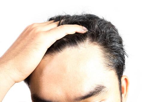 Mann streift seine Hand durch seine fettigen Haare